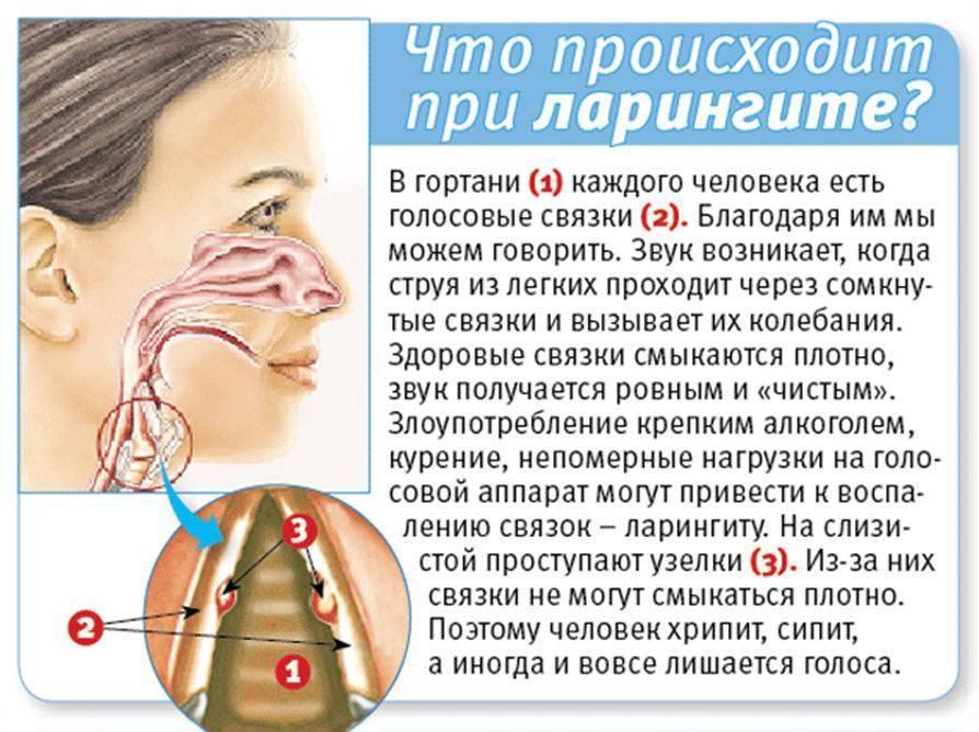 Затяжной горловой кашель у ребенка