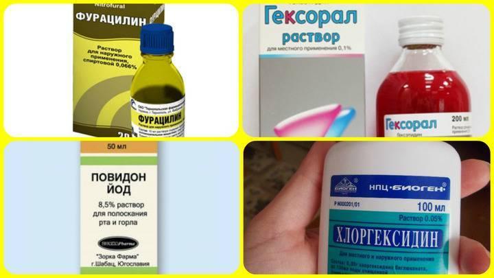 Чем полоскать горло при ангине в домашних условиях: народные средства и лекарства
