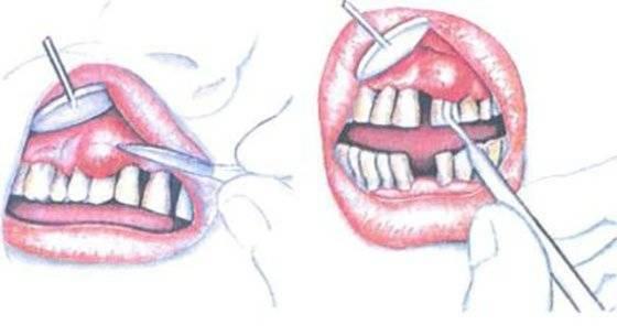 Как лечить зубной свищ у ребенка: фото и лечение на десне молочного зуба