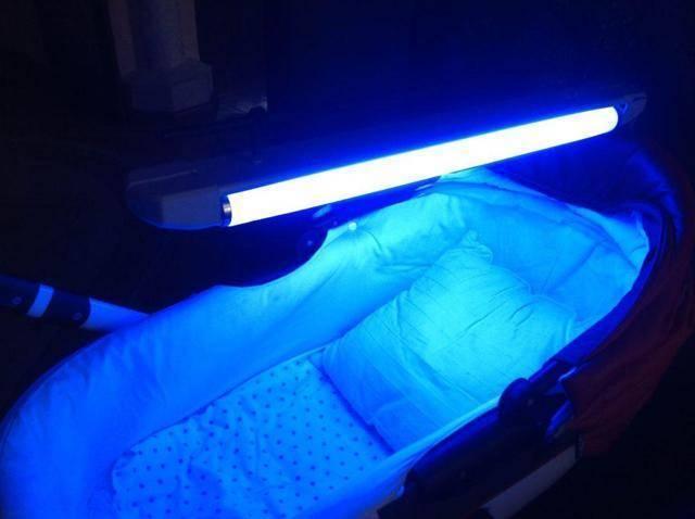 Фототерапия новорождённых при желтухе: показания