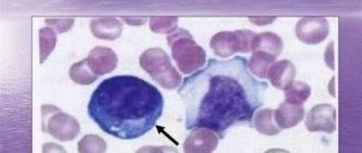 Что показывает анализ крови на атипичные клетки