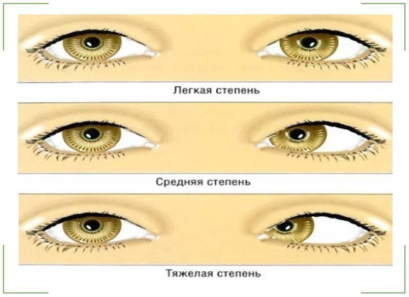 Амблиопия у детей: причины, стадии, диагностика и методы лечения синдрома «ленивого глаза»
