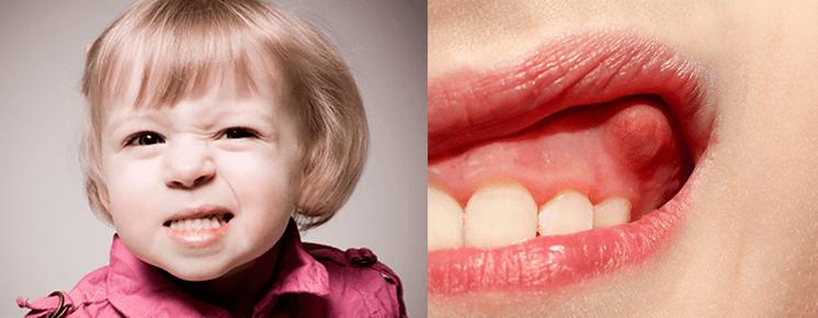 Симптомы и причины возникновения флюса на десне у ребенка