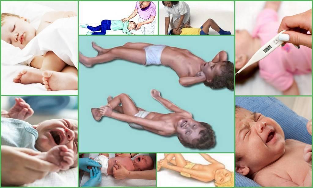 Что делать при фебрильных судорогах у ребенка: первая помощь малышу на фоне высокой температуры - все о суставах