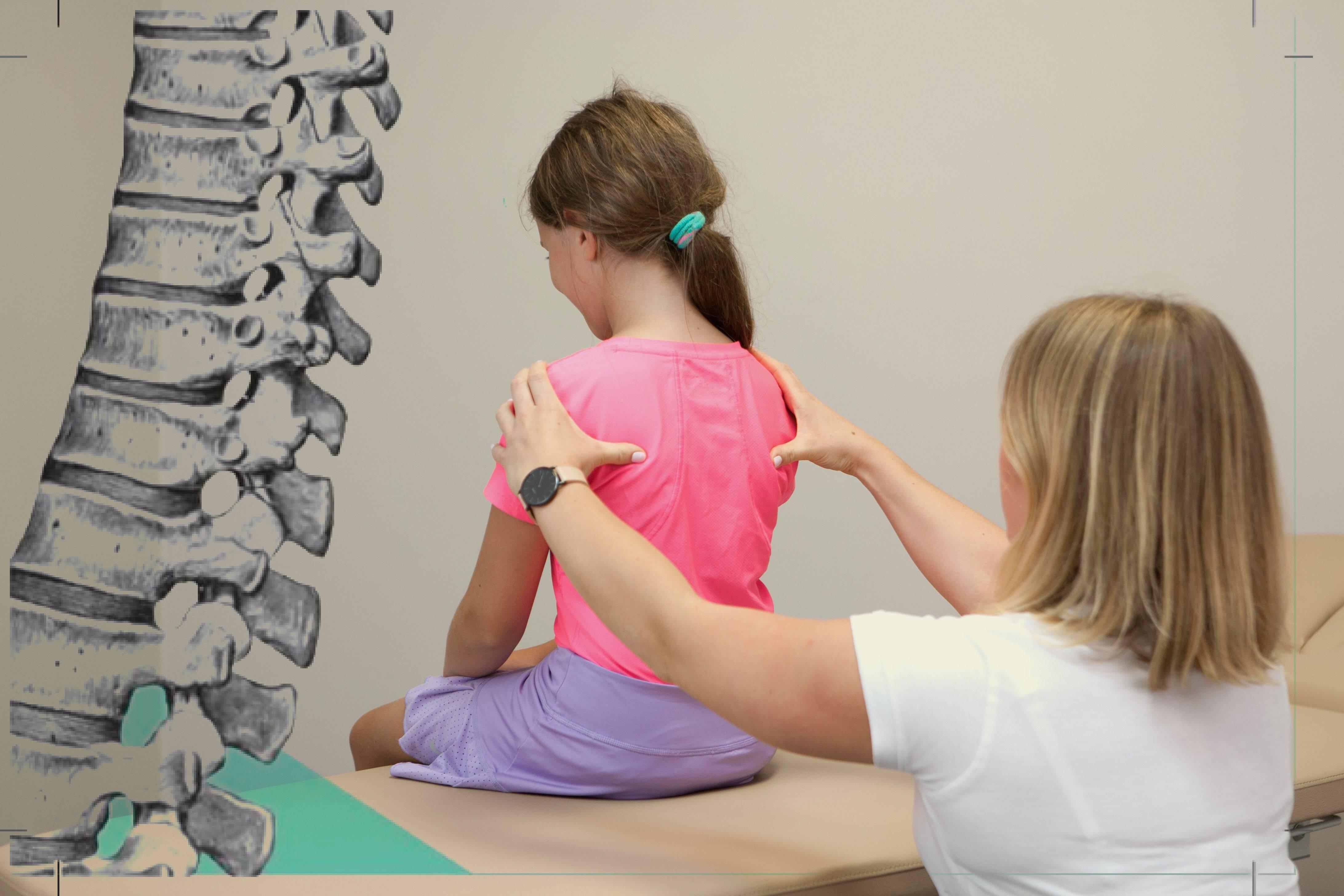 Лечение сколиоза разной степени у взрослых и детей: диагностика, методы лечения и профилактика