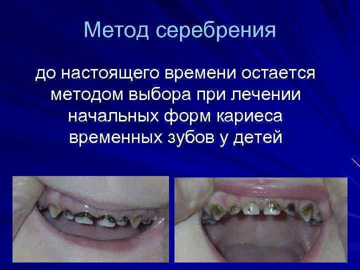 Серебрение зубов у детей с фото до и после: делать или нет, мнение комаровского | spacream.ru