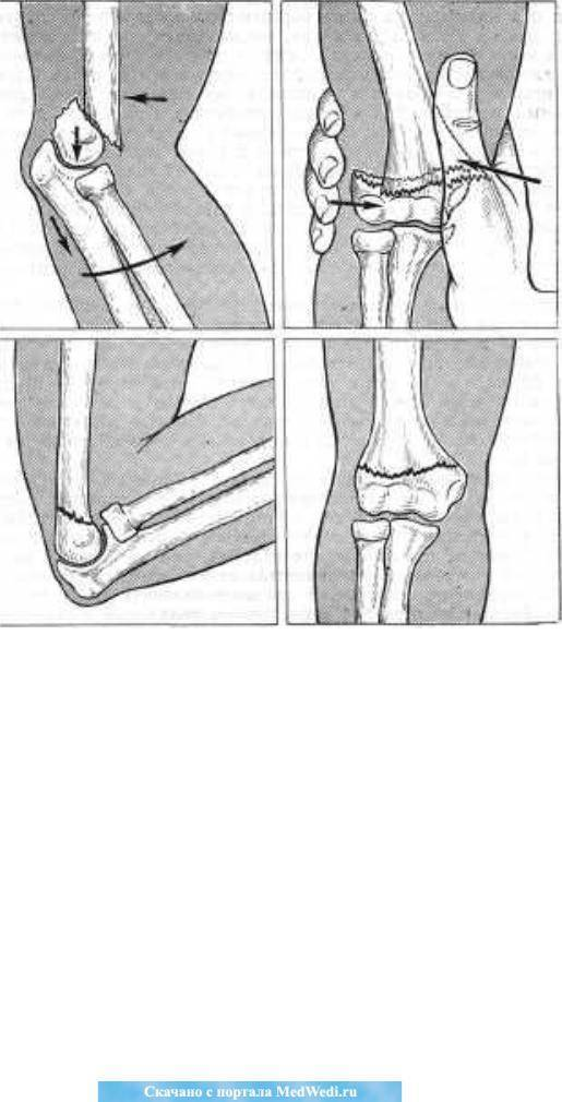 Переломы плечевой кости у детей