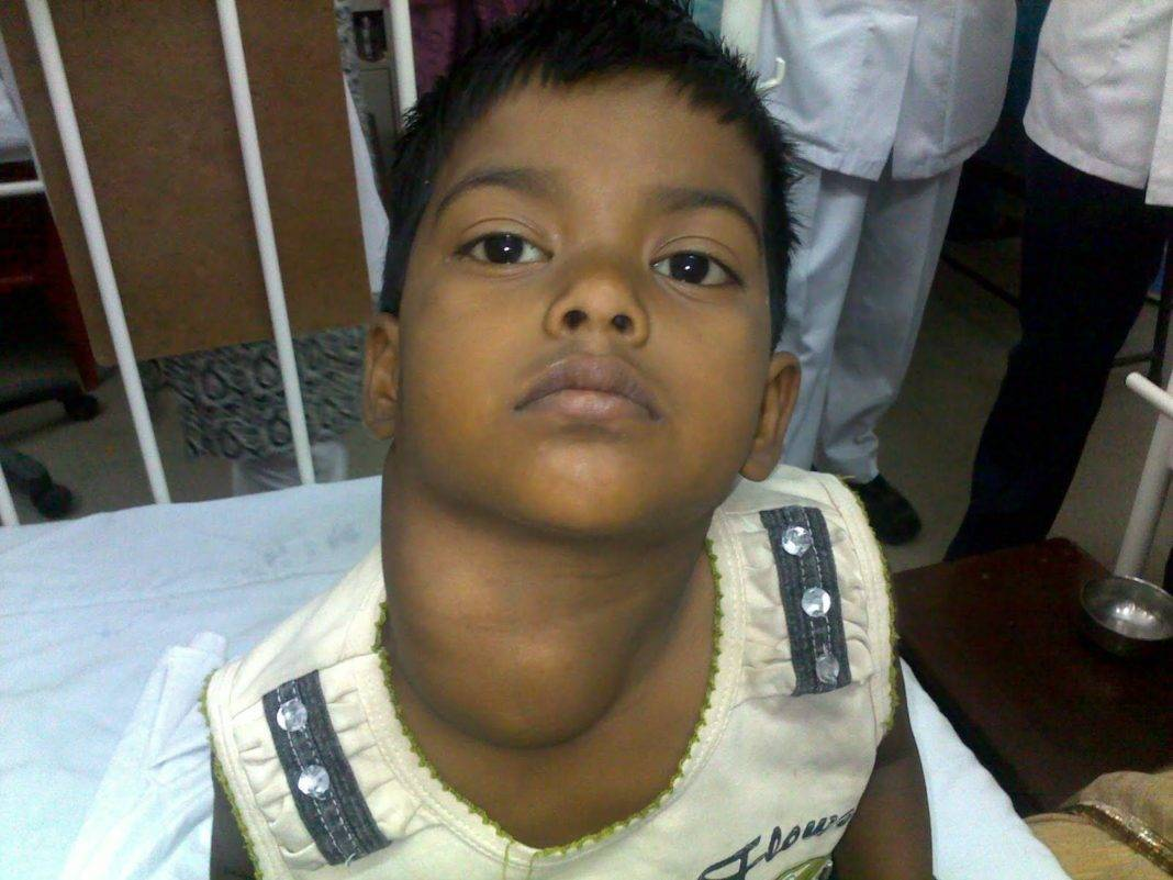 Лимфома у детей: причины, симптомы и возможные осложнения | лечение рака