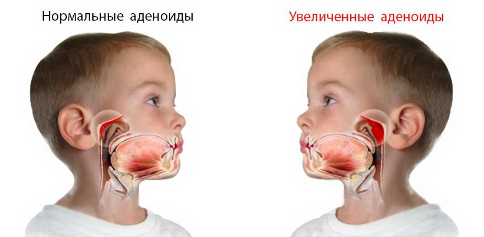 Аденоиды у детей: симптомы и лечение без операции, советы комаровского