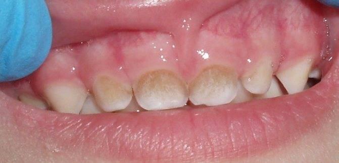 Коричневые пятна на молочных зубах у ребенка - что делать? жми!
