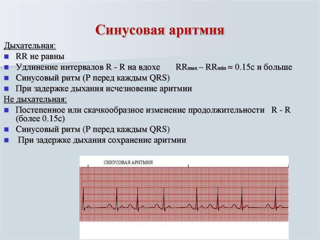 Синусовая аритмия сердца: что это, чем опасно и как лечить
