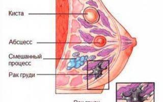 Как расцедить грудь при застое молока у кормящей мамы в домашних условиях при лактостазе — топотушки
