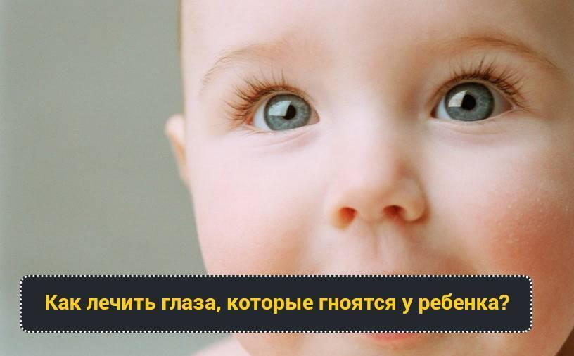 У новорожденного гноится и слезится глазик: конъюнктивит ли это