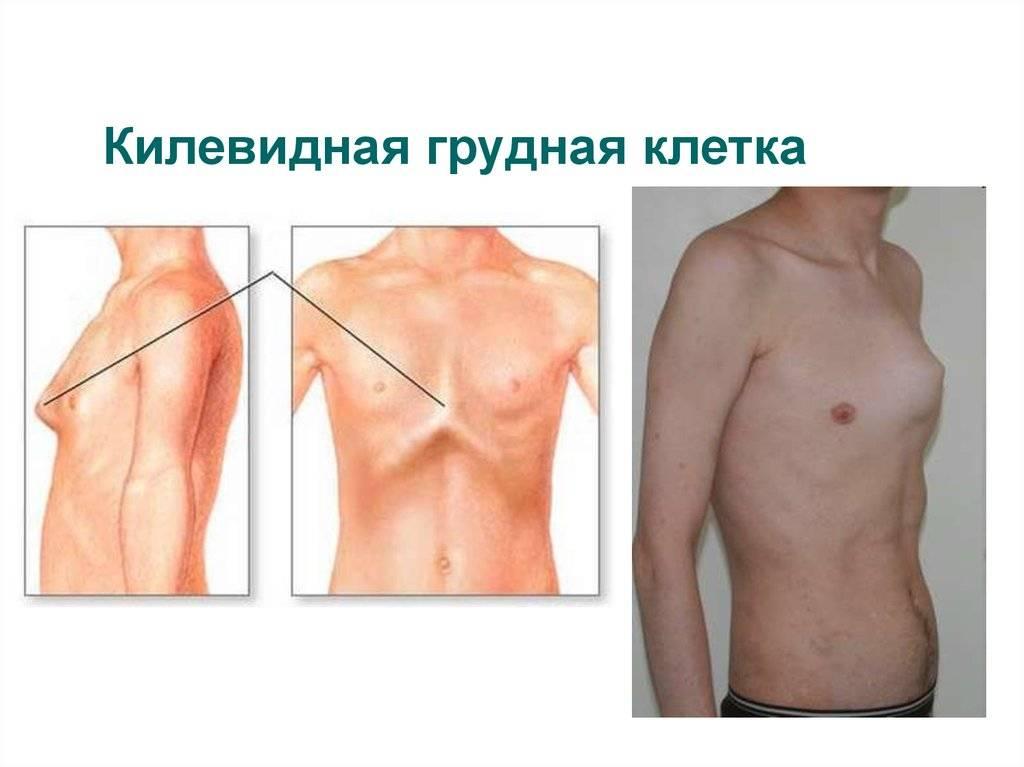 Деформация грудной клетки у ребенка или взрослого: как исправить, лечение, виды