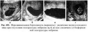 Гестоз при беременности: признаки и последствия – на бэби.ру!