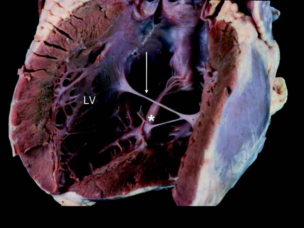 Аномальная хорда левого желудочка у детей