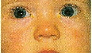 Комаровский - конъюнктивит: лечение глаз у детей, что делать если гноится глазик у новорожденного