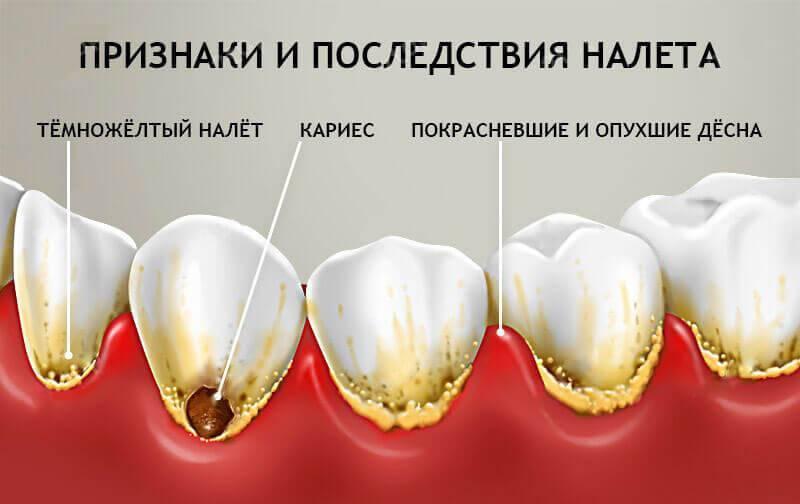 Избавляемся от желтого налёта на зубах у ребенка
