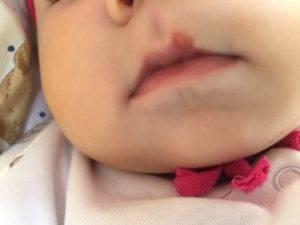 Что делать, если обнаружен герпес у грудного ребенка