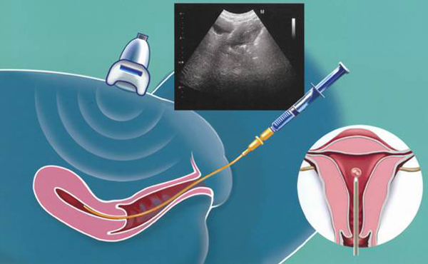 Пункция фолликулов при эко – как проводят процедуру, и что ожидает женщину?
