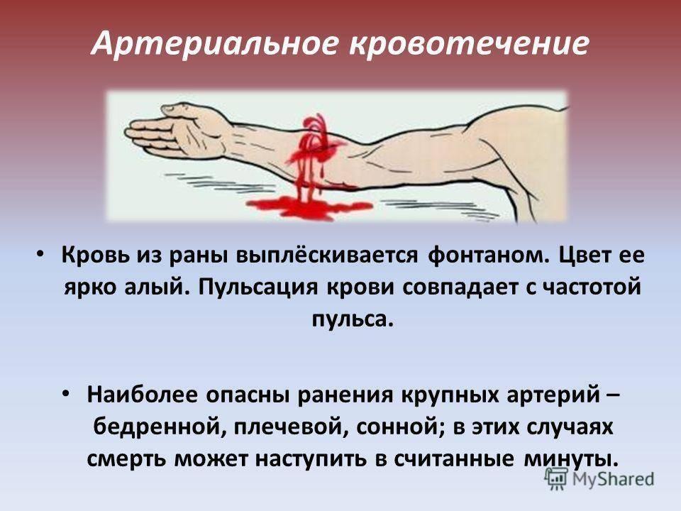 Как остановить кровотечение во время менструации?
