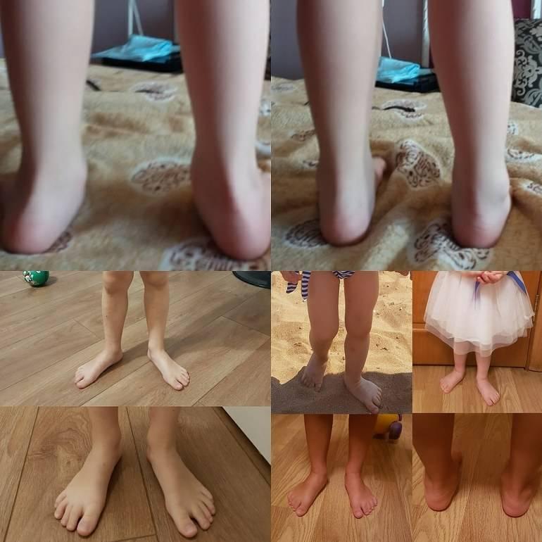 Массаж при вальгусной деформации стопы у детей: как правильно делать при плосковальгусной стопе, особенности