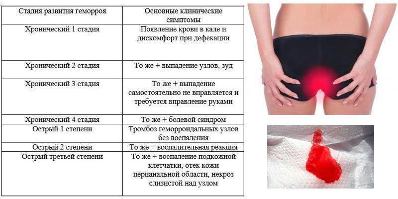 Причины острой и тупой боли в заднем проходе у женщин
