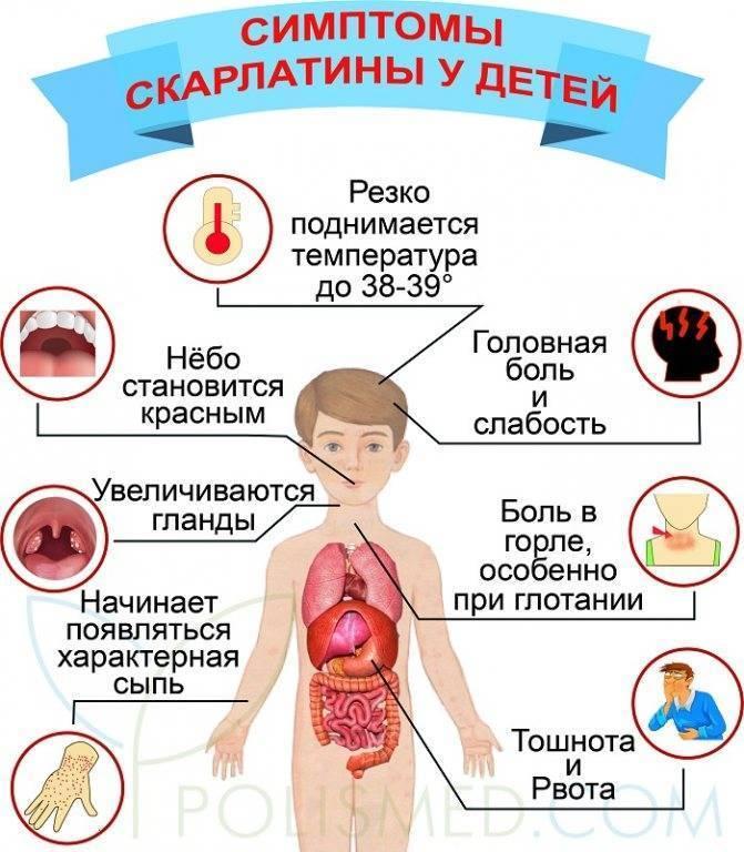 Скарлатина. причины, симптомы, диагностика и лечение болезни :: polismed.com