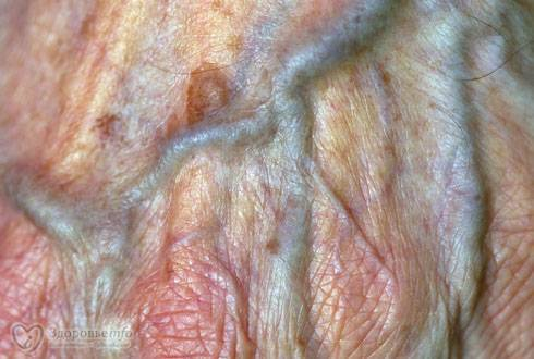 Набухают ли половые губы перед родами. лечение вагинита при беременности. почему опухают губы