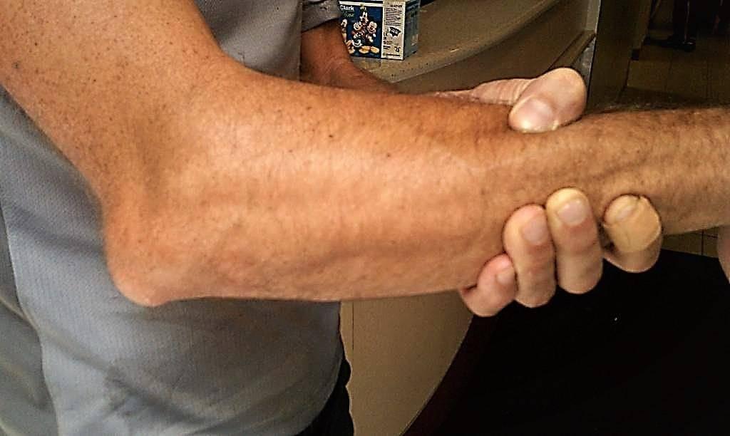 Перелом лучевой кости у ребенка – причины, симптомы и лечение