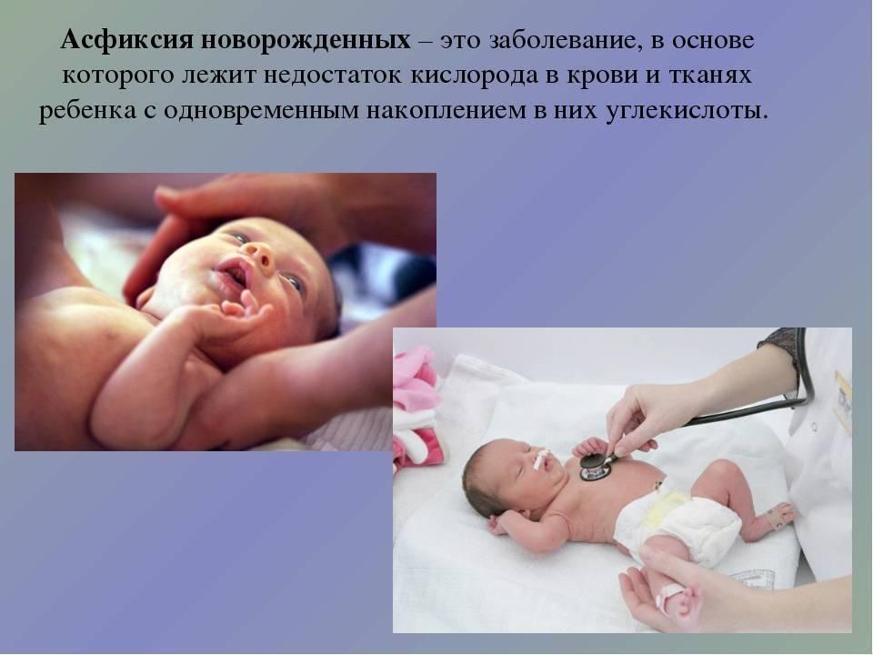 Асфиксия новорожденных