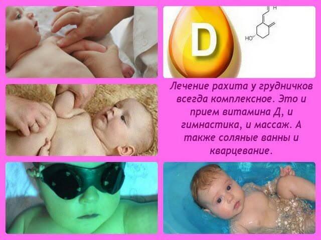Рахит у детей: симптомы и лечение с фото