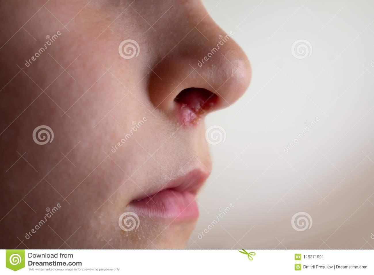 Герпес на носу