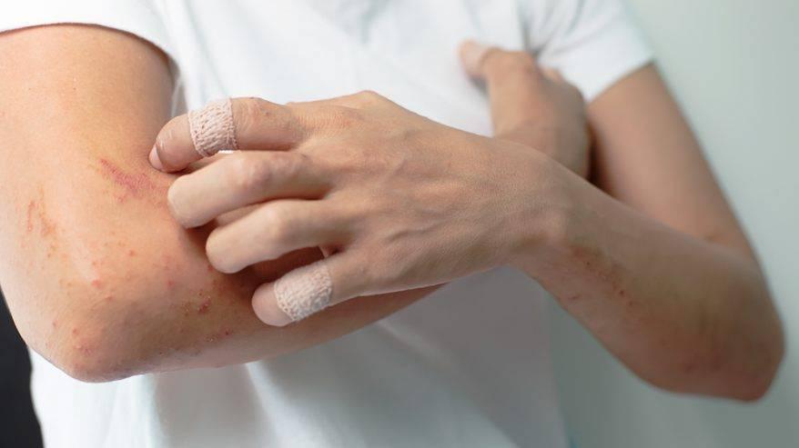 Покраснение кожи у ребенка по всему телу, зуд и аллергия в виде пятен: фото и лечение