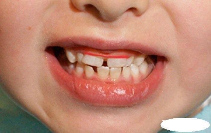 Что делать, если у ребенка криво растут зубы - лечитесь вместе с wheremed.com