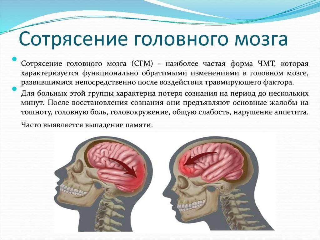 Сотрясение мозга у ребенка: симптомы и лечение в домашних условиях
