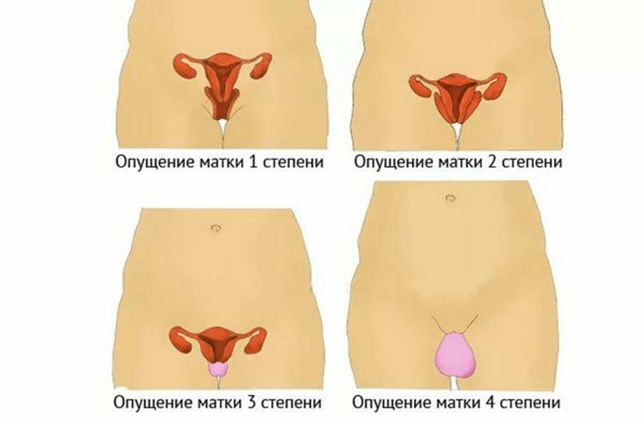 Какие существуют причины опущения матки у женщин: методы диагностики и возможные варианты лечения