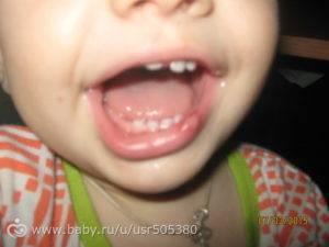 Ребенок ударился губой и она опухла: что делать