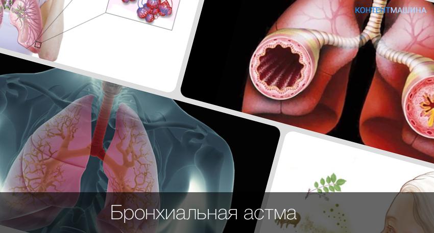 Лечение аллергического бронхита у детей | pnevmonya.ru