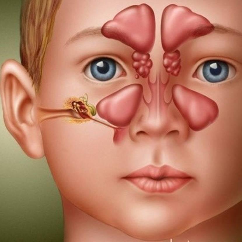 Moraxella catarrhalis в носу у ребенка