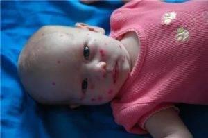 Фукорцин для детей: инструкция по применению при стрептодермии, ветрянке, опрелостях