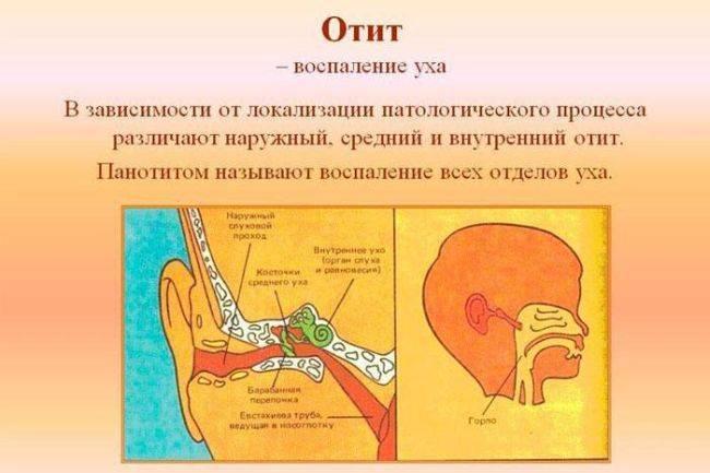 Запах из уха у ребенка причины м лечение - wc-master.ru