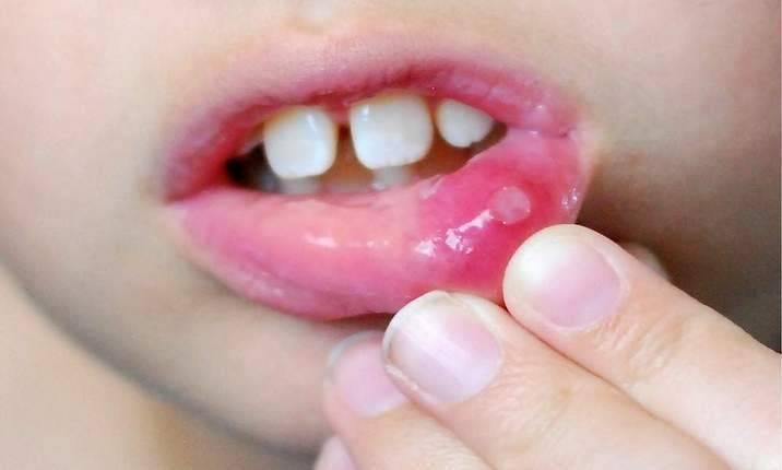 Стоматит на губе у ребенка: лечение, чем мазать