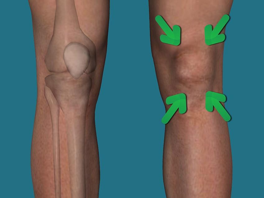 Болят колени при приседании: основные причины появления недуга. болят колени при вставании: что нужно делать и как лечить