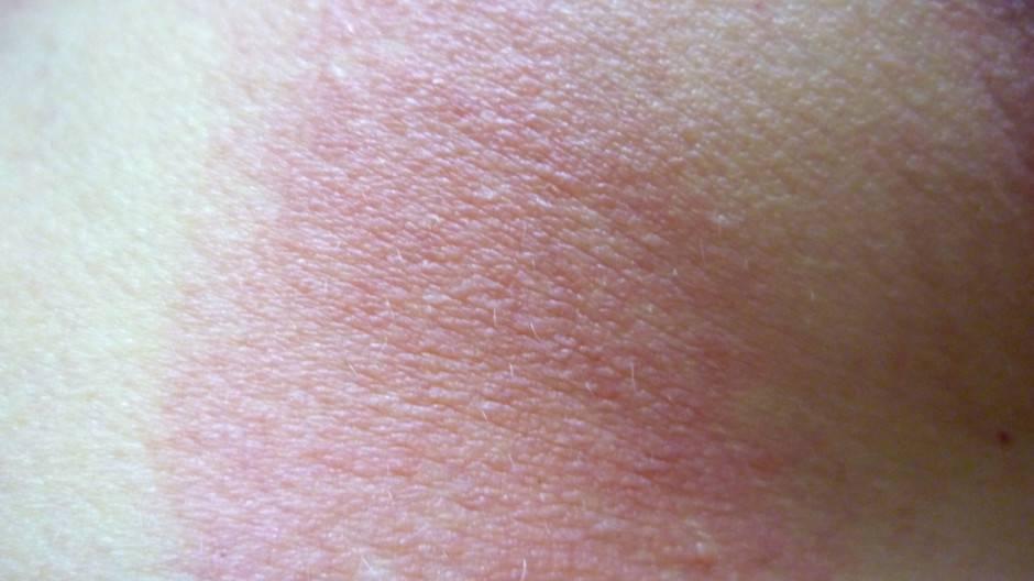 Шершавая кожа у ребенка на ногах, руках, щеках, попе: причины сухости, шелушения