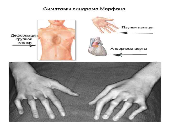 Синдром дисплазии соединительной ткани: что это такое, симптомы и лечение, код по мкб 10 | ревматолог | zaslonovgrad.ru