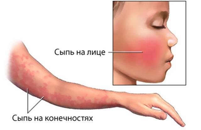Аллергия на ногах у ребенка: фото, чем лечить, что делать, причины сыпи и красных пятен