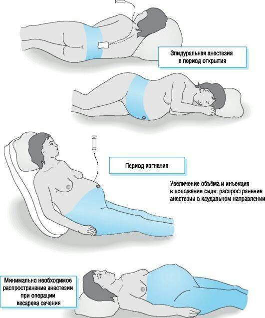 Эпидуральная анестезия: применение, как проводится, последствия