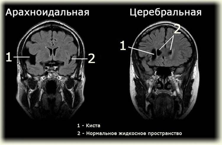 Киста у новорожденного в голове, киста головного мозга у грудничка