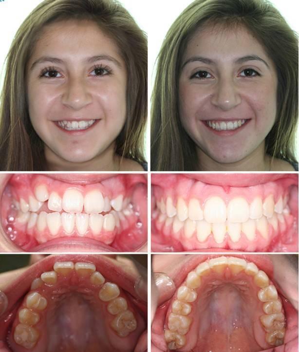 Выравнивание зубов брекетами у детей – нюансы установки и стоимость процедуры
